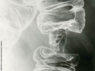 colon cancer xray