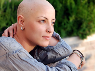 Stock image of woman with alopecia