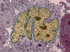 Photo of lung cancer cell