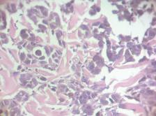 Microscopic image of a sarcoma cell