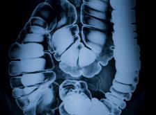 bowel-xray